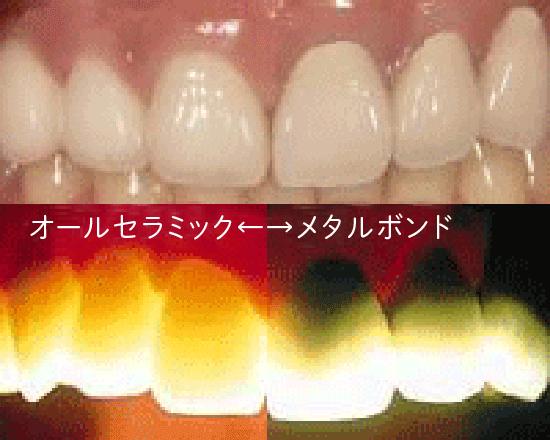 審美歯科|野田市 春日部市周辺の歯医者なら、関宿グリーン歯科(歯科・矯正・小児・インビザライン)