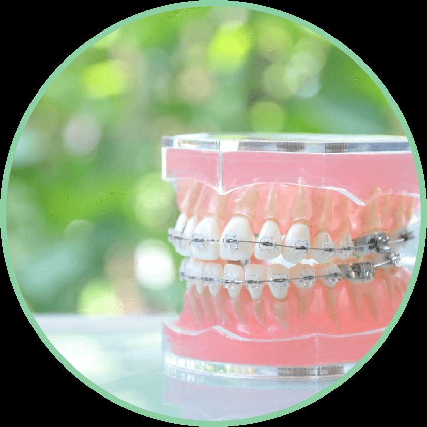 矯正歯科|野田市 春日部市周辺の歯医者なら、関宿グリーン歯科(歯科・矯正・小児・インビザライン)