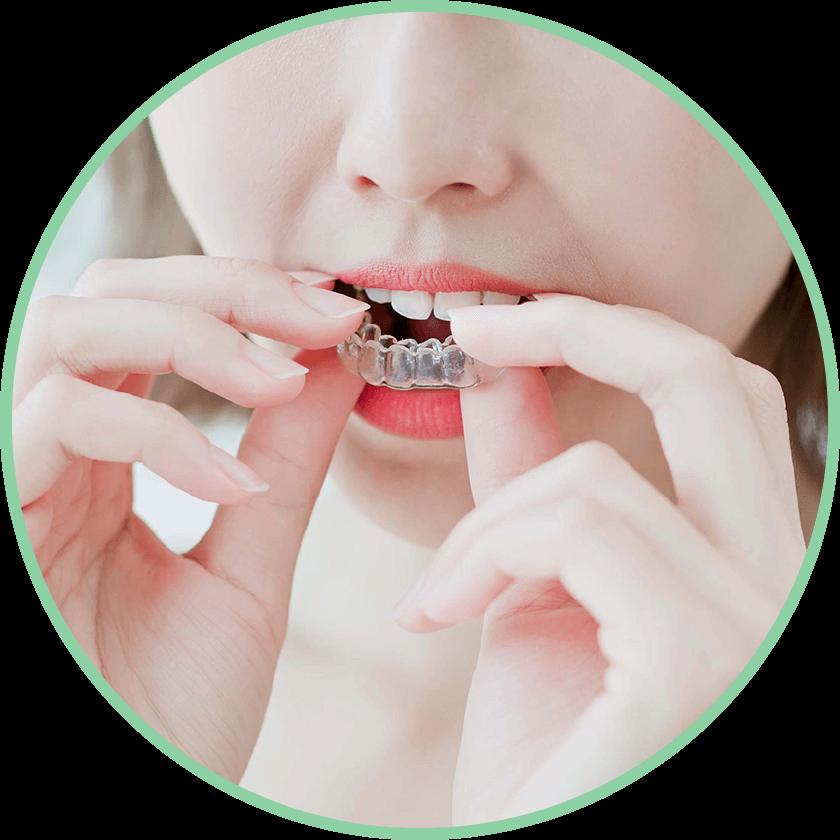 インビザライン|野田市 春日部市周辺の歯医者なら、関宿グリーン歯科(歯科・矯正・小児・インビザライン)