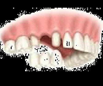 インプラント治療|野田市 春日部市周辺の歯医者なら、関宿グリーン歯科(歯科・矯正・小児・インビザライン)